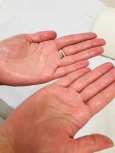 traitement contre l'hyperhidrose des mains